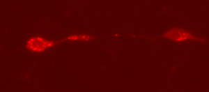 RFP fluorescent labelled Lysosomes
